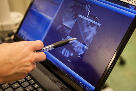 Digital Dental X-ray - Bourgeois Dental