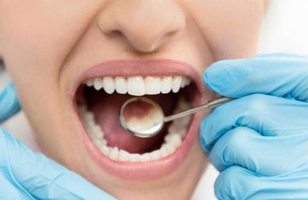 Full Mouth Debridement - Bourgeois Dental